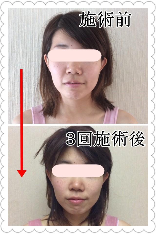 整顔矯正・小顔矯正のビフォーアフター