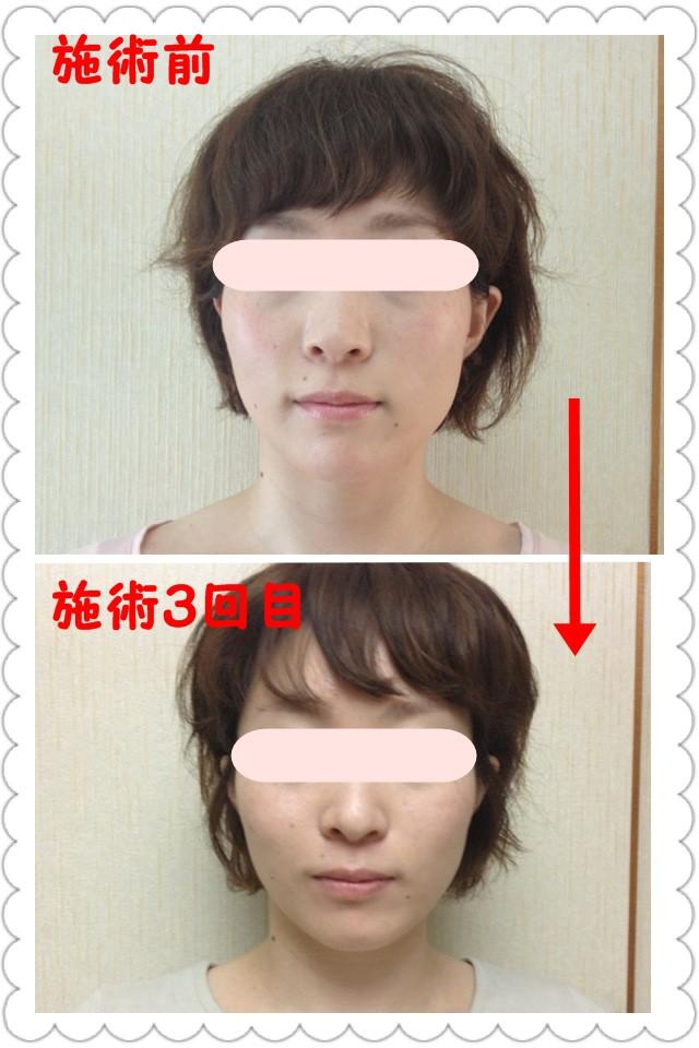 整顔レイキ(小顔矯正)のビフォーアフター